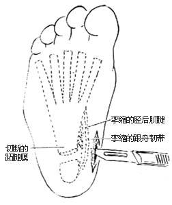 腱膜 切断术/⑴切断挛缩的胫后肌腱和跟舟跖侧韧