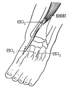 肌腱 转移/⑴切口