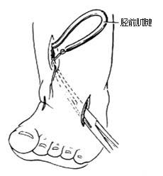 肌腱/⑶从切口3中拉出胫前肌腱