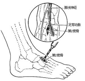 肌腱/⑷显露第2楔骨并钻孔