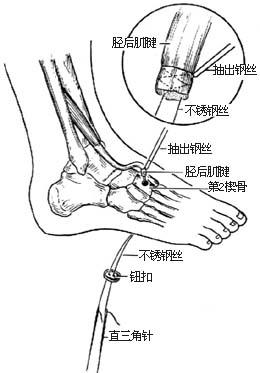 皮肤 肌腱/⑸将前移的胫后肌腱穿过第2楔骨隧道...... 百拇医药网您现在查看...